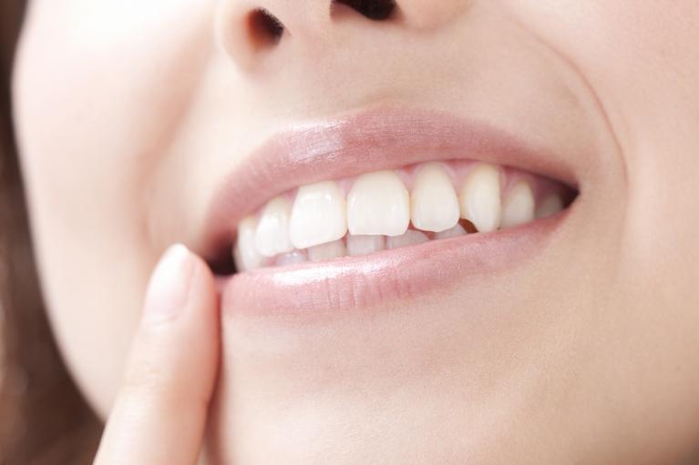 歯を失ったら